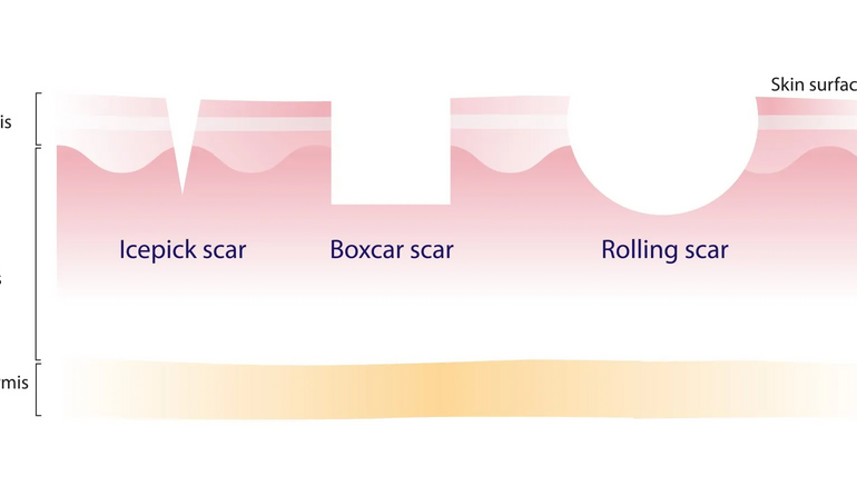 What are acne scars and how to treat them